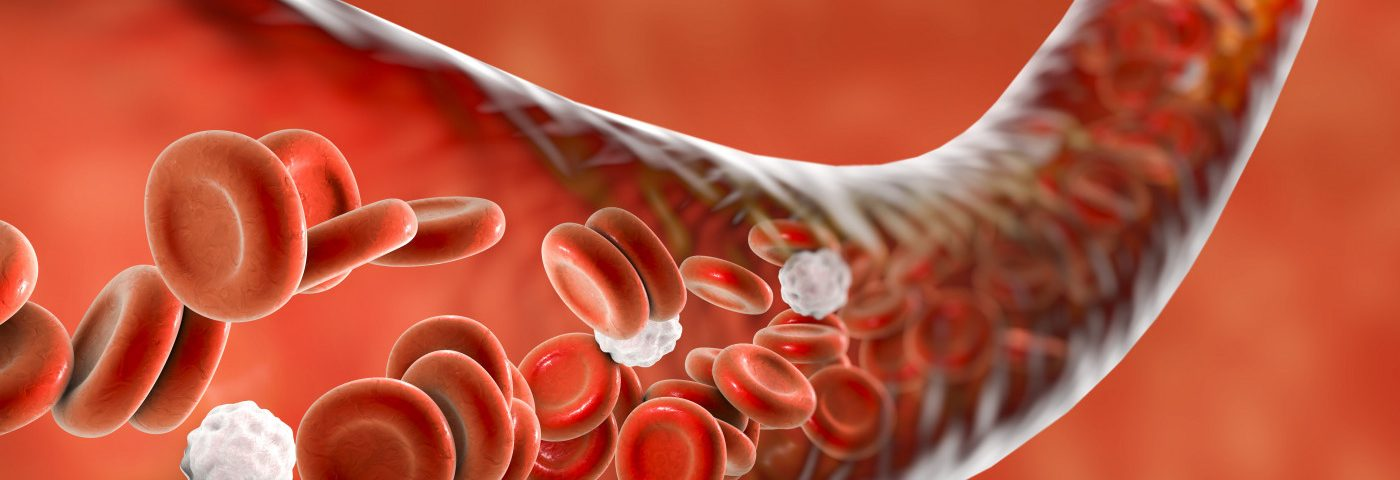 'Simple' QuantiFERON‐TB Gold Blood Test May Help in Diagnosing HLH